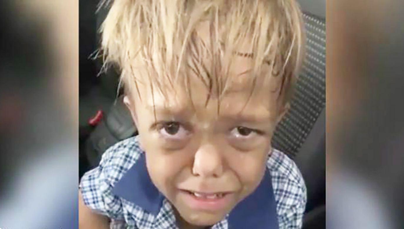 Wsparcie chłopcu przesłał m. in. aktor Hugh Jackman (fot. FB/Yarraka Bayles)