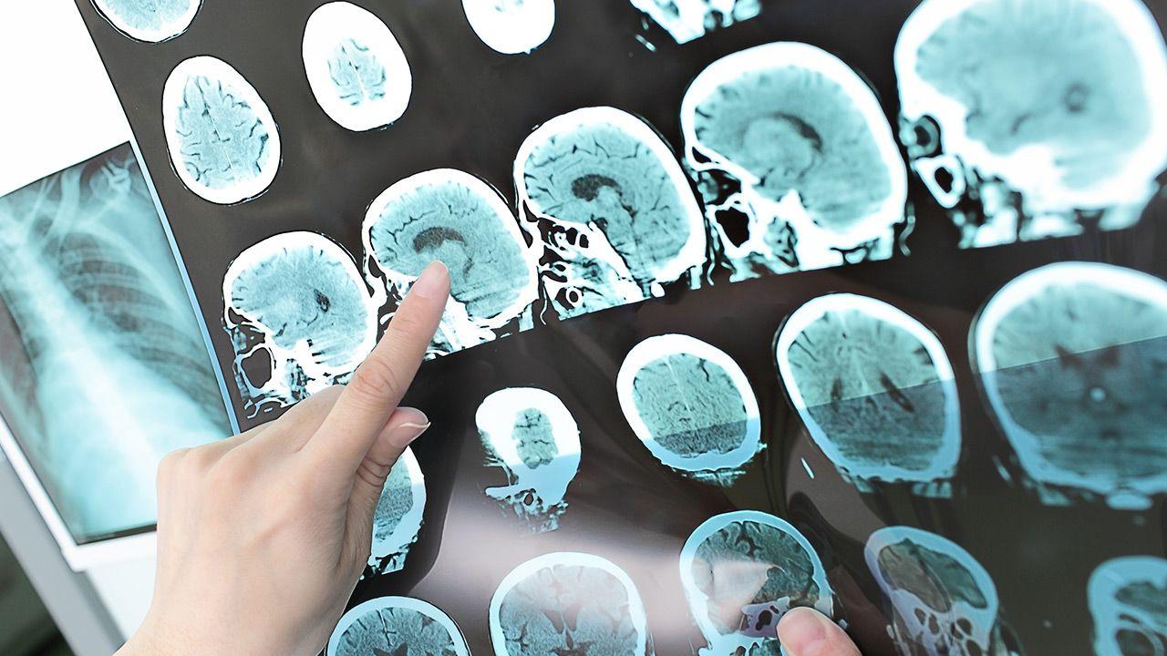 Badania naukowców nad ryzykiem udaru (fot. Shutterstock)