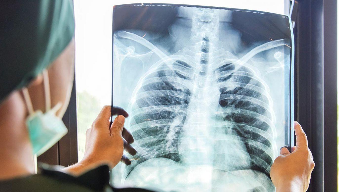 Do badania wykorzystano nową technikę diagnostyczną (fot. Shutterstock/Supawadee56)