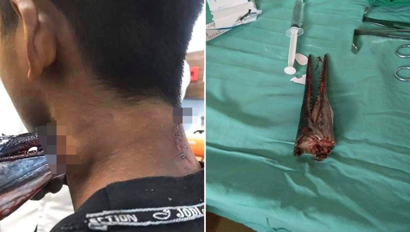 Chłopiec przebywa teraz pod obserwacją lekarzy w szpitalu (fot. Facebook/Savage Paramedics)