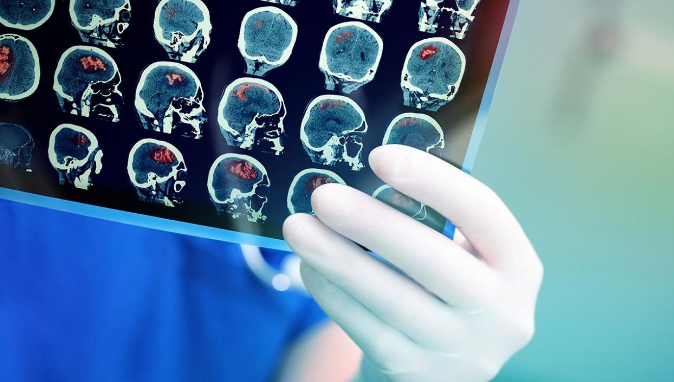 Nowotwory neuroendokrynne, w skrócie nazywane NET w organizmie chorego mogą rozwijać się latami (fot. Shutterstock/fam_photo)