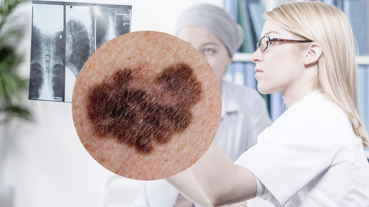 Wcześnie zdiagnozowanego czerniaka po prostu się usuwa (fot. Shutterstock)