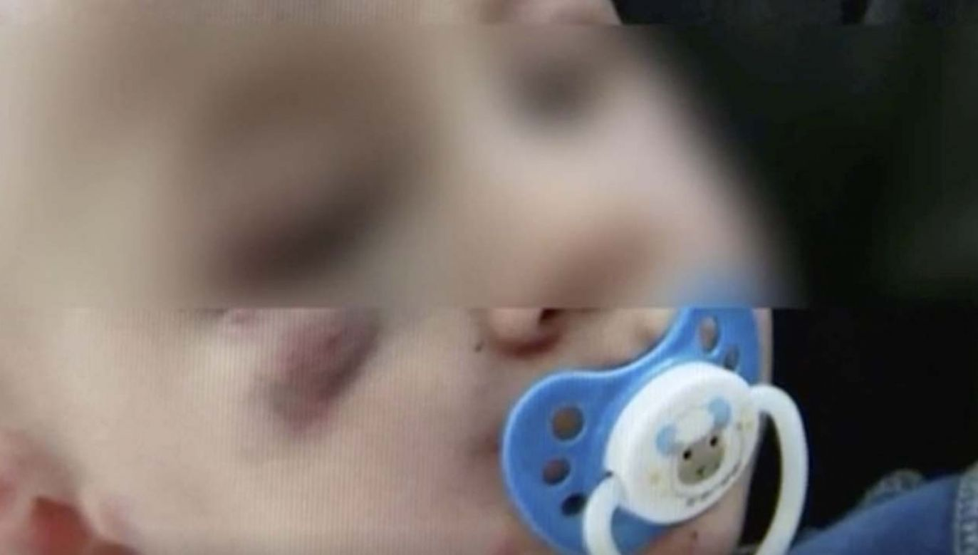 Dwulatek trafił do szpitala (fot. TVP3)
