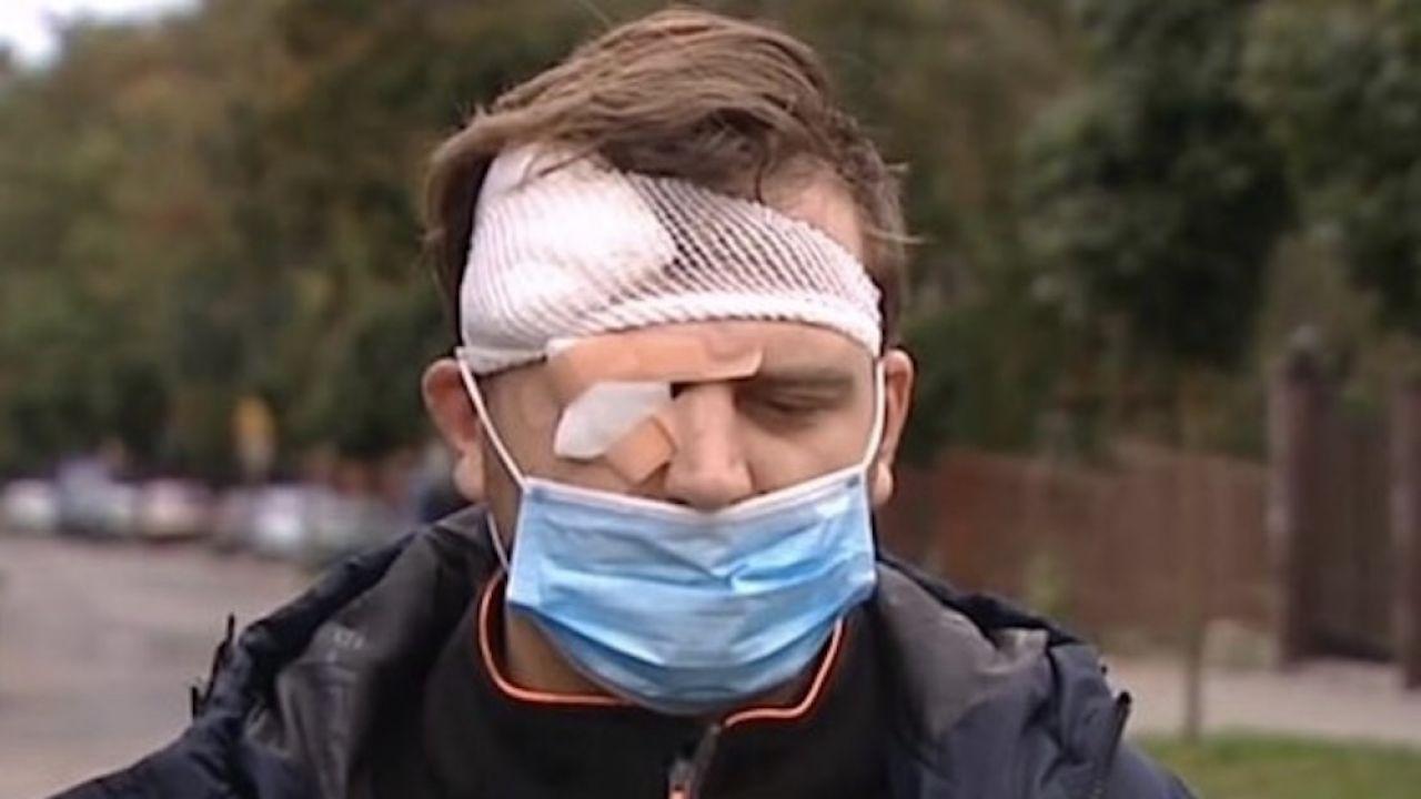 Sprawca pobicia, syn Ryszarda K., pozostaje na wolności (fot. TVP Info)